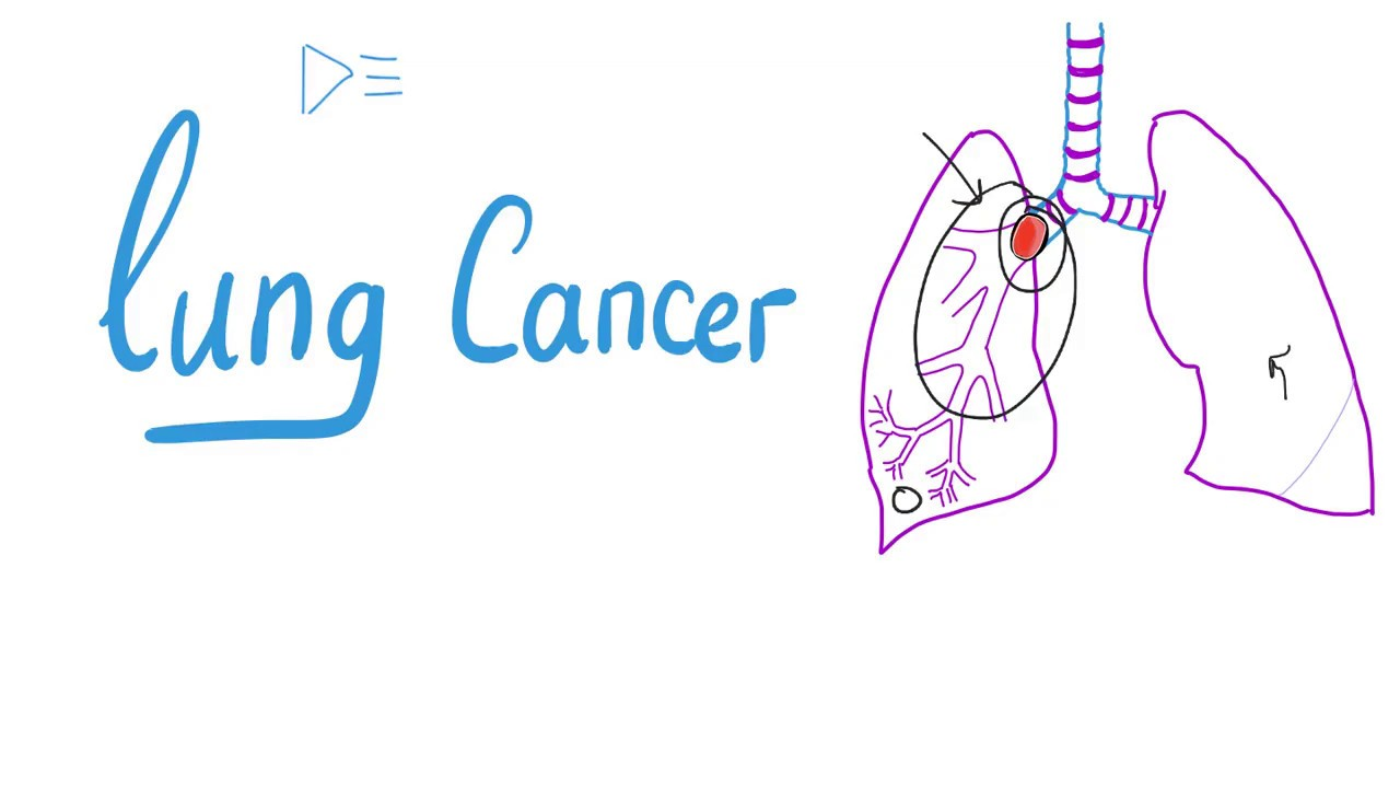 What is NSCLC in medical terms