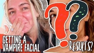 GETTING A VAMPIRE FACIAL?! what it is? 7 days later? results and feedback!