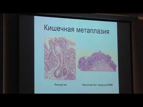 60 Беляков ММ Атрофический гастрит, кишечная метаплазия и дисплазия взгляд патоморфолога
