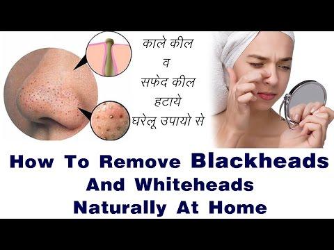 Remove BLACKHEADS / WHITEHEADS | चेहरे से किल हमेशा की लिए ख़त्म करने के सबसे असरदार नुस्खे