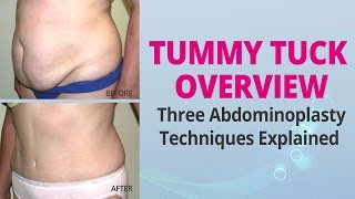 Tummy Tuck Overview - Three Abdominoplasty Techniques Explained - Edelstein Cosmetic - Toronto Thumbnail