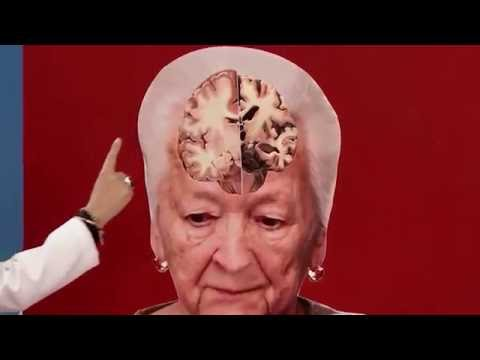 What is Alzheimer's and how is it generated