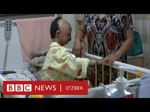 Ўзбекистон: Юзи йўқ ўзбек бола Корея касалхонасида операция қилинди - BBC Uzbek