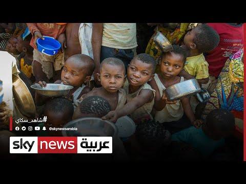 إثيوبيا.. سوء تغذية لدى أكثر من 60% من النساء الحوامل في تيغراي