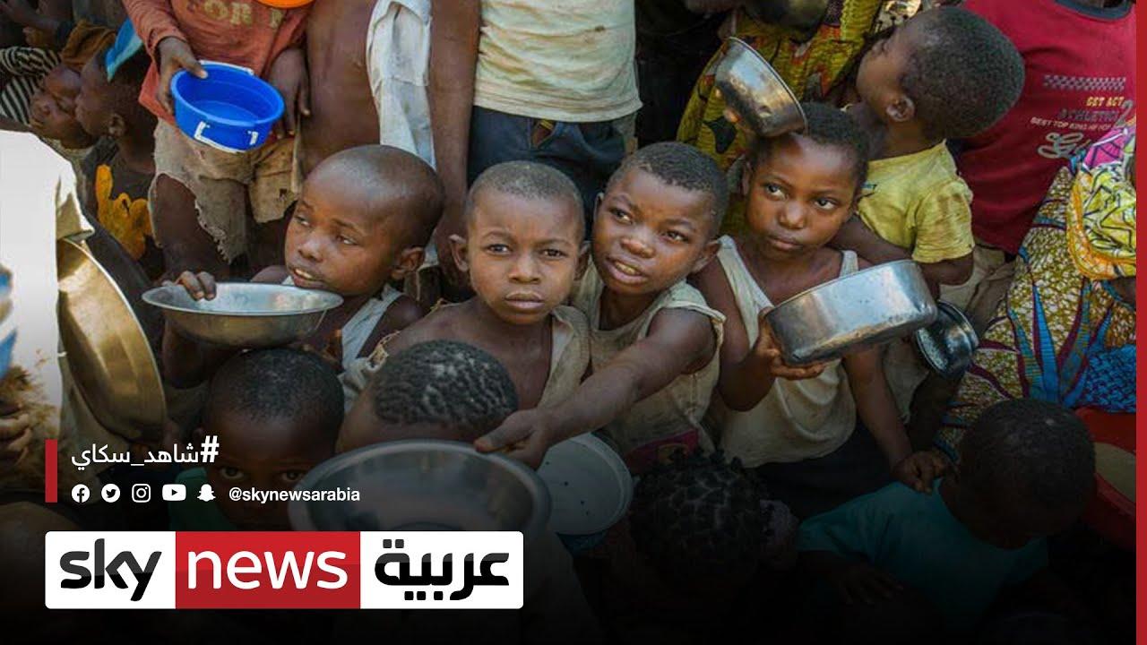 إثيوبيا.. سوء تغذية لدى أكثر من 60% من النساء الحوامل في تيغراي  - 02:54-2021 / 10 / 16