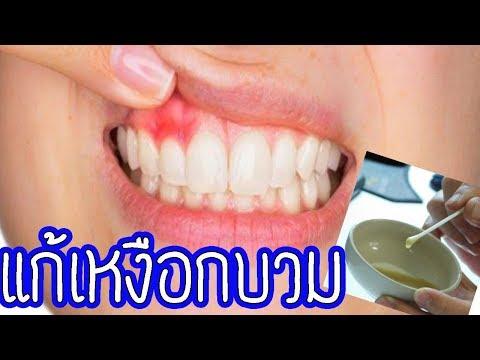 Easy home l สุดทึ่งลองใช้ของ2สิ่งในครัวแก้ปัญหาเหงือกบวมปวดฟัน อาการจะทุเลาอย่างเห็นได้ชัด