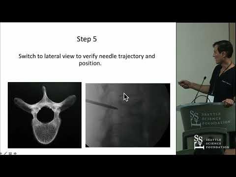Approaches for Vertebral Augmentation - Douglas P. Beall, M.D.