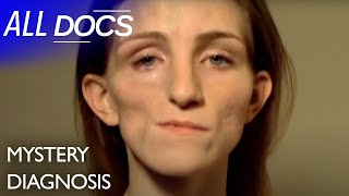 The Girl With Half A Face: Parry-romberg Syndrome | Medical Documentary | Reel Truth