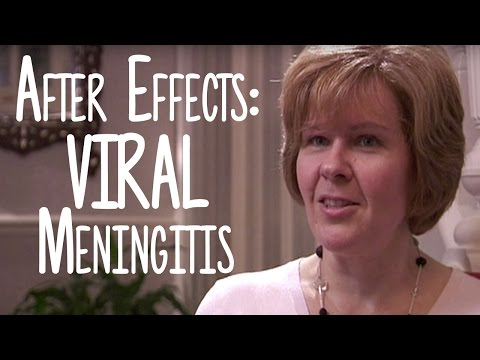 Viral Meningitis - The Hidden Impact