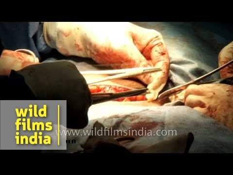 Stitching the abdominal incision after a Cesarean section delivery