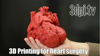 Baby Heart Patient Saved by 3D Printing