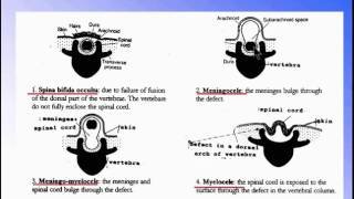 ( Nervous System)   4 Anomlies of Spinal Cord