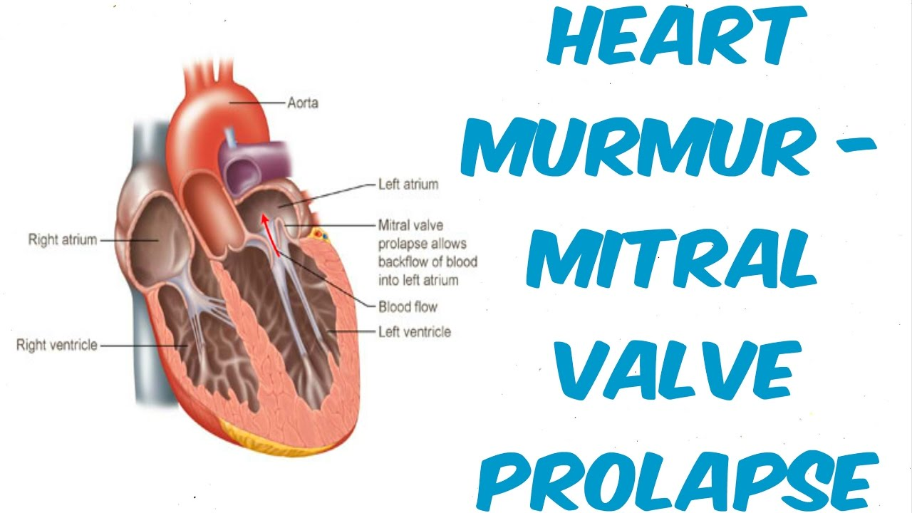 Mitral Valve Repair, A2 Prolapse, and Neochorda Insertion ...