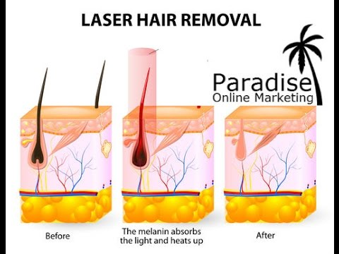 Marketing for laser hair removal in Canada
