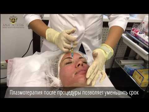 Гиперпигментация кожи : лечение лазером