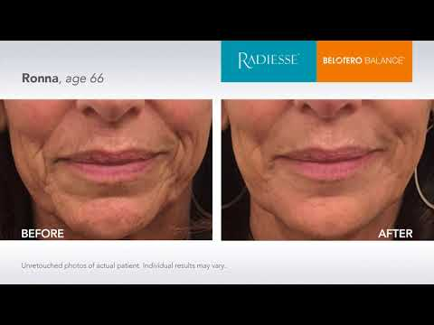 See the RADIESSE® difference! - YouTube