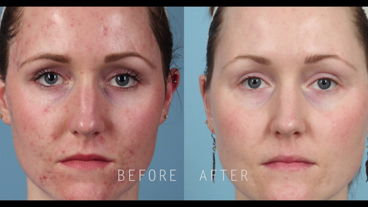 Picosure Focus Skin Rejuvenation For Treatment Of Acne