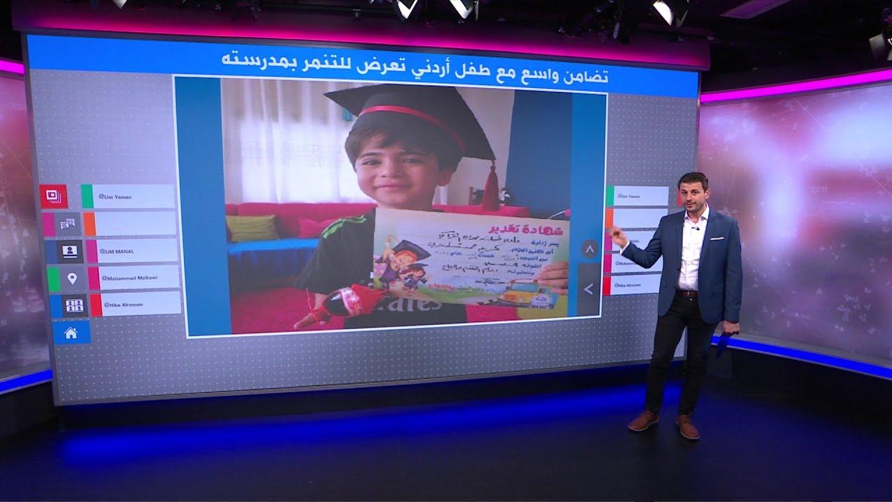 تضامن واسع مع طفل أردني تعرض للتنمر في مدرسته بسبب يده