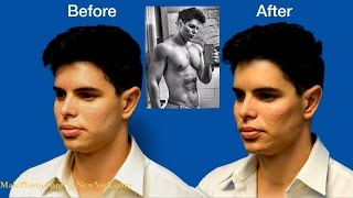 NYC Male Model Makeover by Dr. Douglas Steinbrech - Part 5