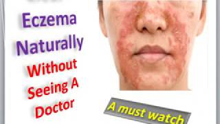How to stop an eczema itch videos / InfiniTube