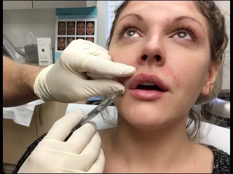 Getting Botox and Juvederm (lip injections) WARNING: GRAPHIC