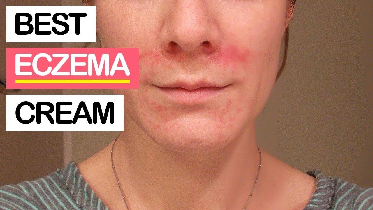 Dry Skin Eczema Vs Psoriasis | Diydrywalls org