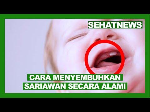 cara-menyembuhkan-sariawan-di-lidah-dengan-cepat-dan-alami