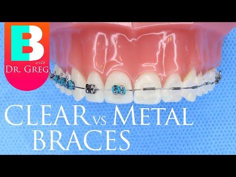 Clear Braces Vs Metal Braces