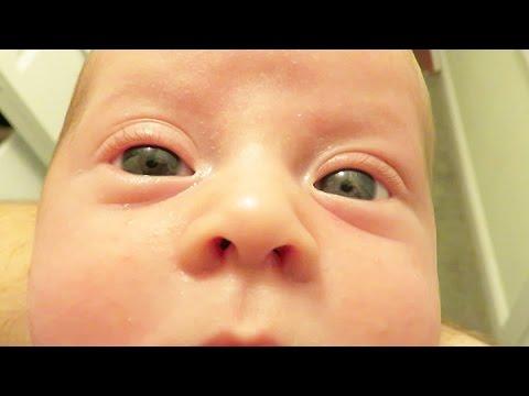 Our Son Has Heterochromia Iridum - YouTube  Our Son Has Het...