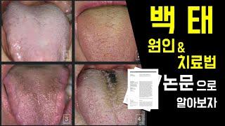 백태 없애는법 & 백태 원인 논문으로 알아보자