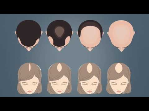 Who is a candidate for hair transplantation?