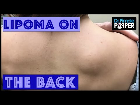 A Lipoma Removal in a Nervous Patient