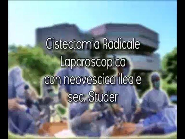 Laparoscopic surgery - Cistectomia radicale laparoscopica con neovescica ileale sec. Studer