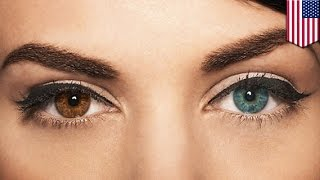Laser can turn your brown eyes blue permanently with a quick, 20-second procedure - TomoNews