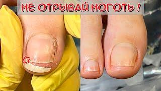 Скручиваются ногти на ногах / Ноготь после хирурга