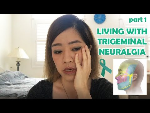 Trigeminal neuralgiaTrigeminal neuralgia(TN) is one of the most common causes of facial pain charact.