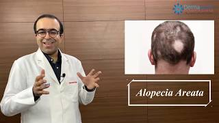 Download ALOPECIA AREATA Symptoms, Causes & Treatments   Dr Rohit Batra   Permanent Cure