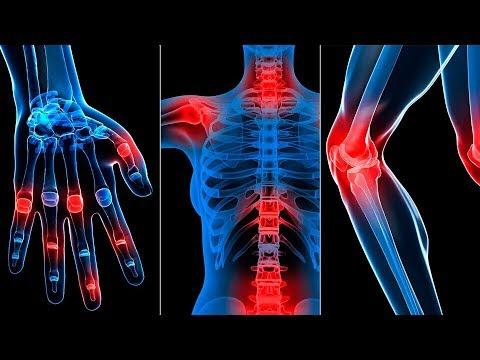 Артрит, артроз, остеохондроз, остеопороз, грыжи позвонков