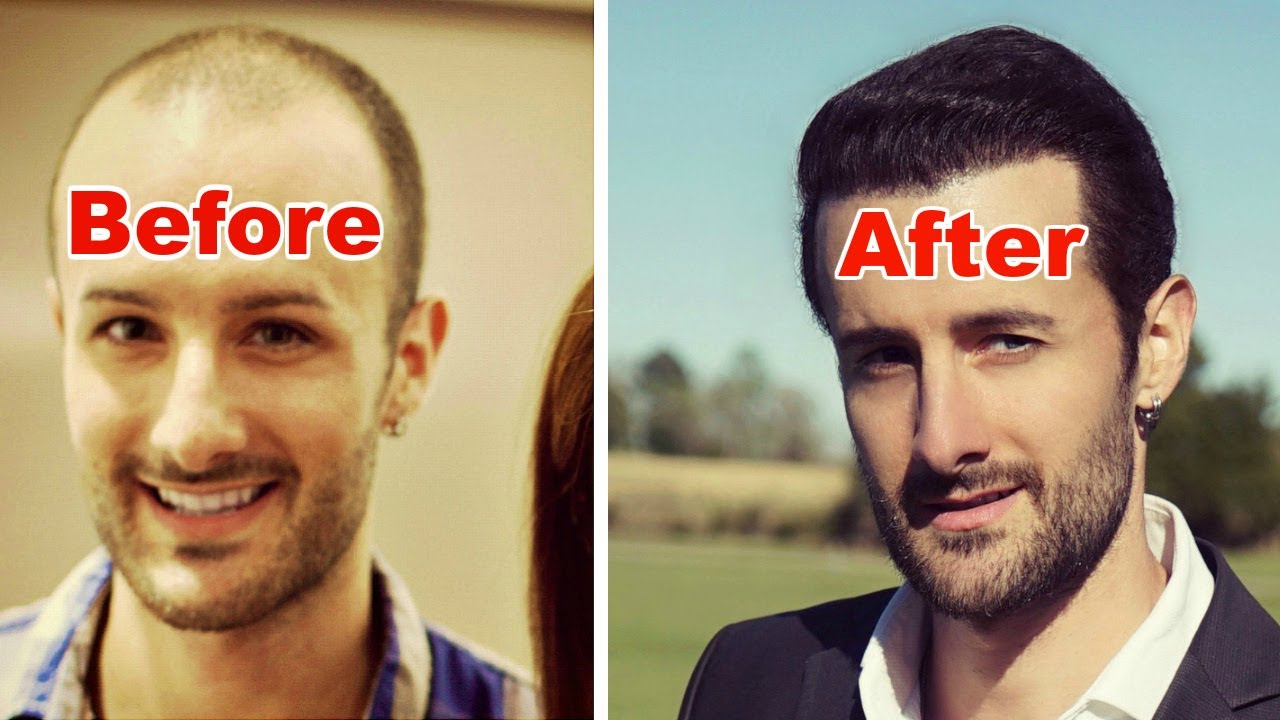 How Many Hair Transplant Grafts Do You Need To Achieve