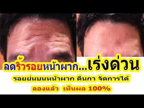 วิธีลดริ้วรอยหน้าผาก ริ้วรอยระหว่างคิ้ว หายได้จริง ไม่ต้องใช้ครีมแพง | Get rid of Forehead Wrinkles
