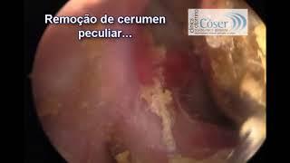 Удаление гигантского куска серы из уха | Гигантская серная пробка