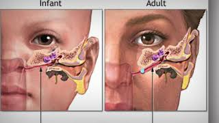 This blocked ear wax removal extraction procedure is performed by UK pioneer and world leading endos.