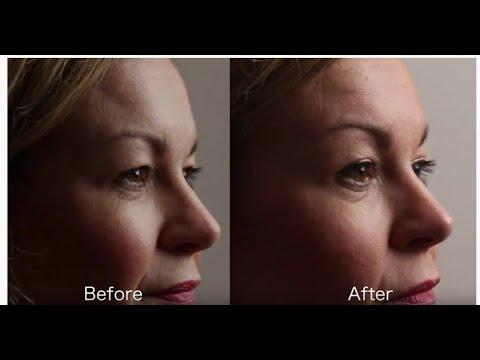 Download Tixel skin resurfacing treatment results. Did it work?