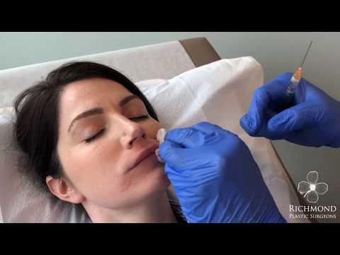 Dr. Chen: Lip Enhancement with Juvéderm Ultra Plus XC