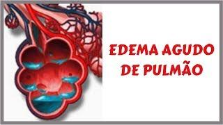Pode ser curado pulmonar o edema