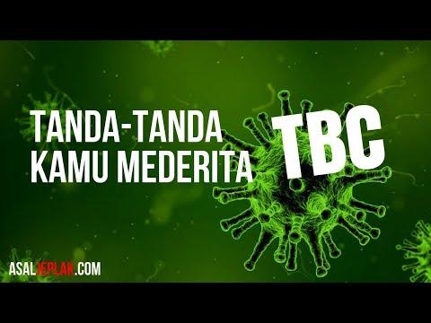Tanda tanda seseorang menderita TBC (Tuberkulosis / Tuberculosis)