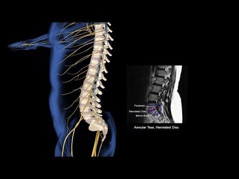 Spinal Injury Animation | Doovi