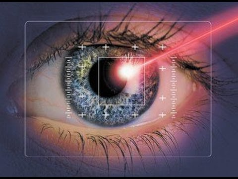 Картинки по запросу Лазерная коррекция зрения