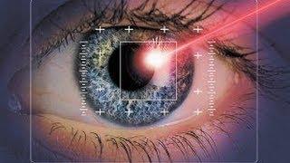 Лазерную коррекцию зрения , делают так !!!