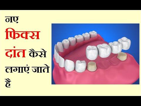 नए-फिक्स-दांत-कैसे-लगाएं-जाते-है-|-(replace-missing-teeth-|-(rntdc-457)